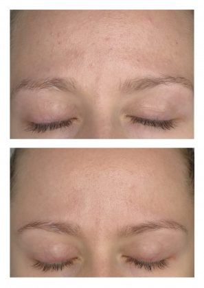Augenblicke Beauty spa cosmetics vorher nachher